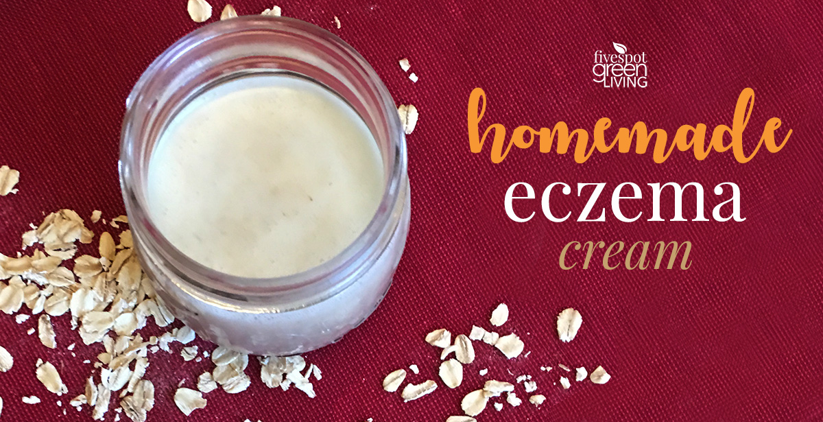 Easy DIY Homemade Eczema Cream