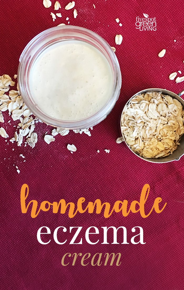 Super Quick and Easy Homemade Eczema Cream Recipe for Dry Winter Skin