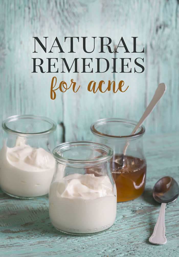 Natural Remedies for Acne at all ages