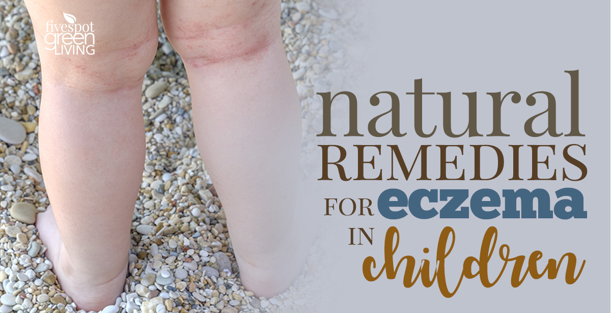Natural Remedies for Eczema in Children