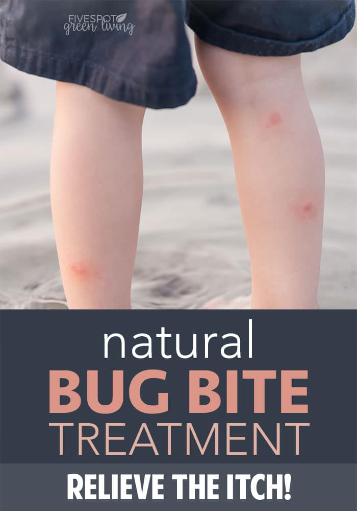 natural insect bites treatment