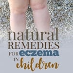 natural remedies eczema