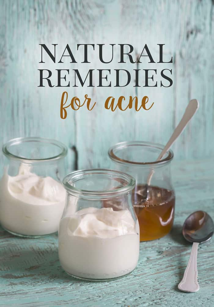 Using natural home remedies for acne works so much better for your skin than harsh chemicals providing an environment to prevent the acne from returning.