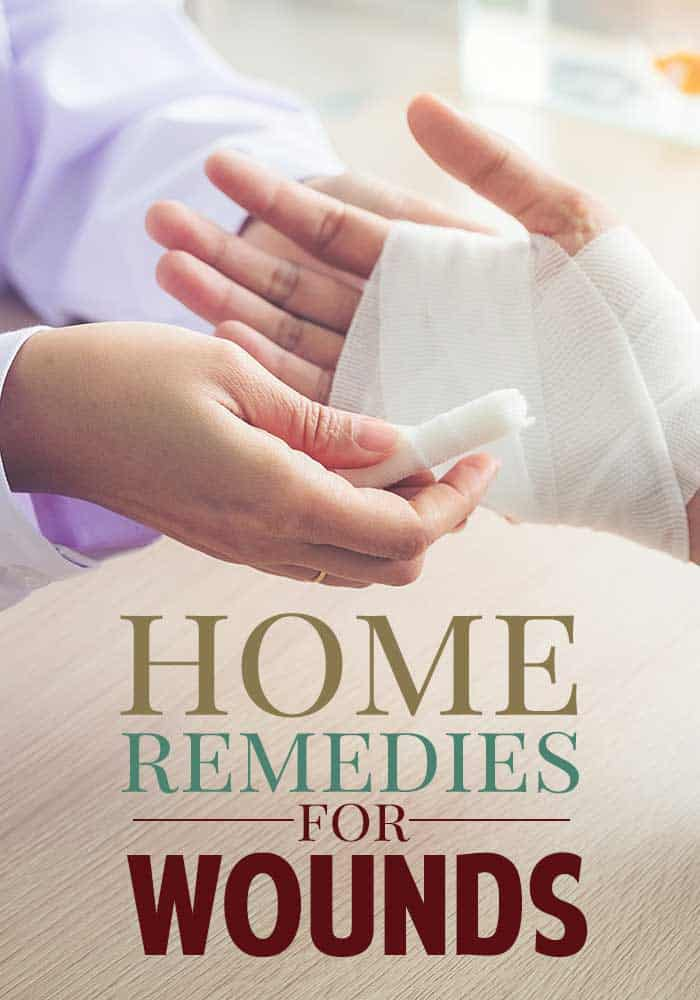 home remedies for burns and scrapes