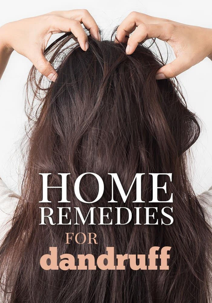 15 home remedies for dandruff