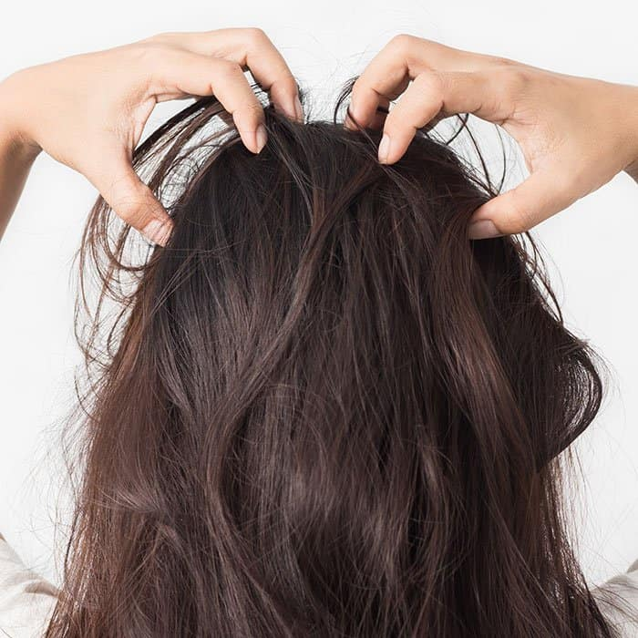 How to Use Coconut Oil and Tea Tree Oil on Dandruff