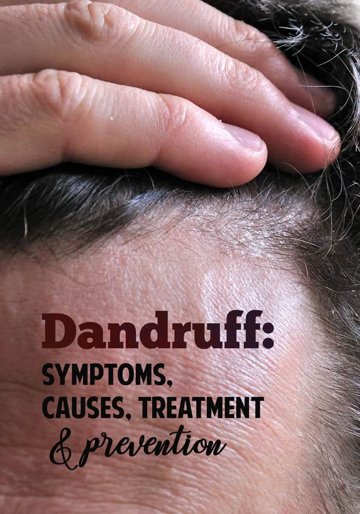 dandruff symptoms causes treatments and prevention