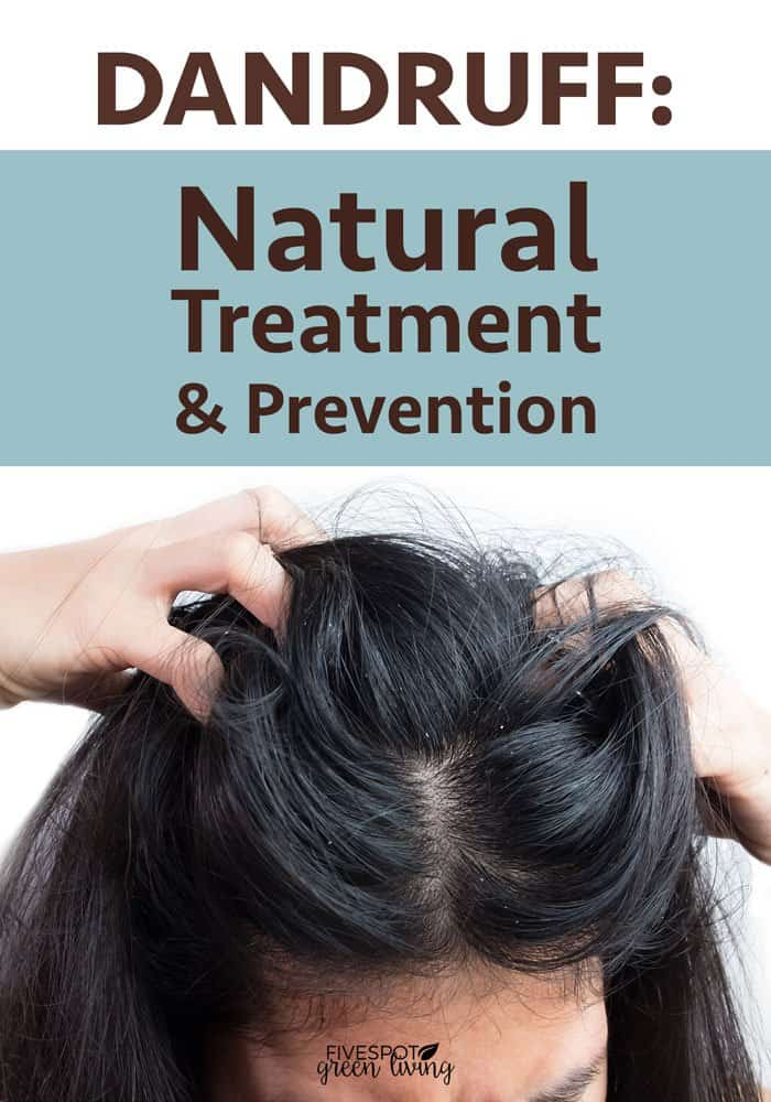 Dandruff Natural Treatment and Prevention