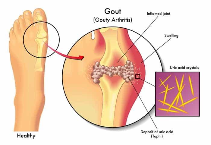 gout arthritis pain