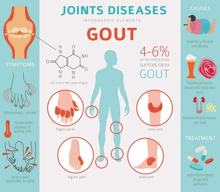 gout joint disease