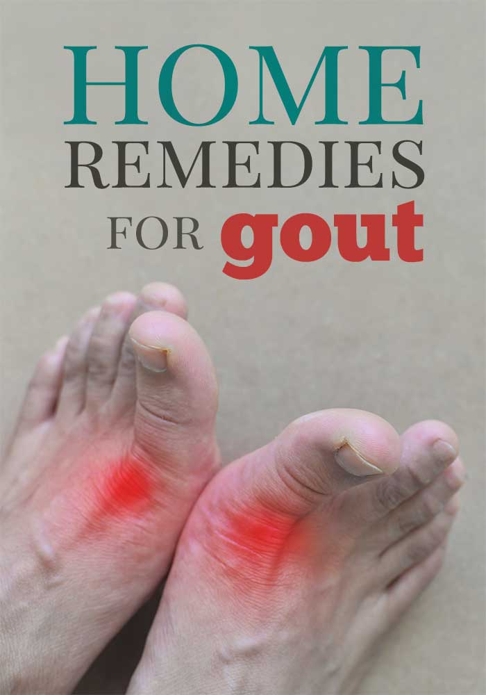 home remedies to treat gout pain