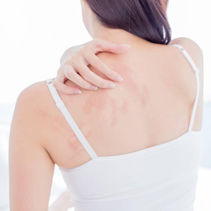 lavender oil for eczema